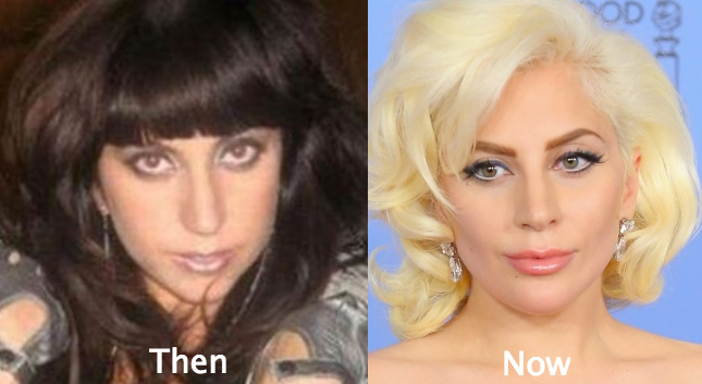 lady-gaga-plastic-surgery-before-and-after